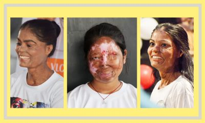 Photos of Kunti Soni and Anshu Rajput, survivors of acid attacks, smiling set against a yellow background with grey borders.